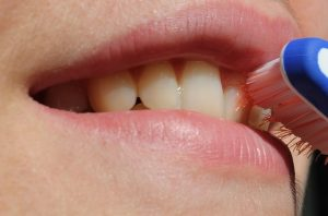 Teeth Whitening Vancouver